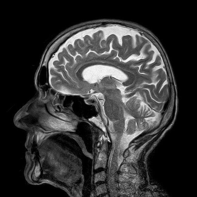 L'effet concret du traumatisme sur le cerveau
